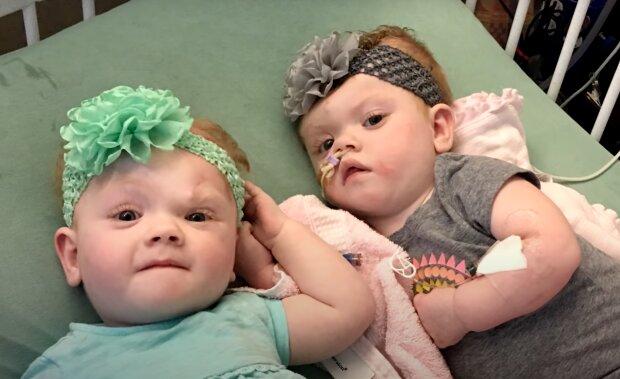 Siamesische Zwillinge. Quelle: Screenshot