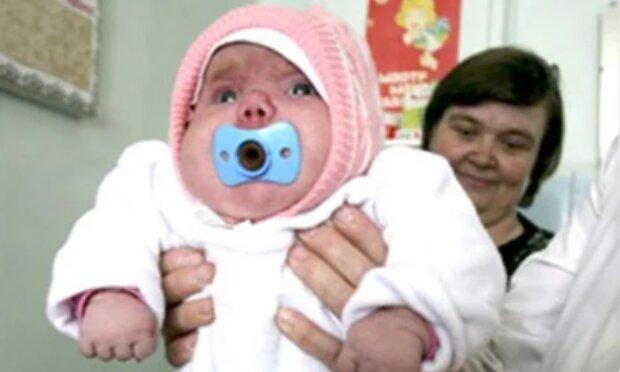 Das Mädchen wurde mit dem Gewicht von acht Kilo geboren: wie es nach 13 Jahren aussieht und lebt