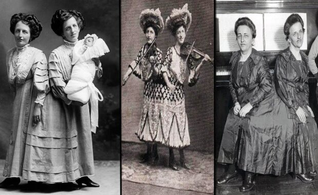 Wie die siamesischen Zwillinge ihre Ehemänner teilten: die Geschichte der Schwestern der Familie Blazek