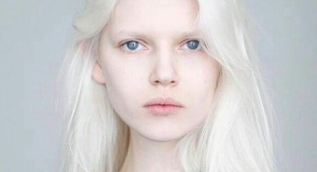 Weißer als Schnee: Wie sehen Albinos aus der ganzen Welt aus