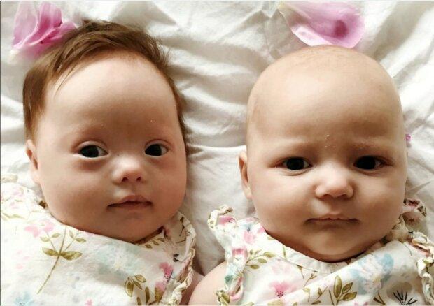 Ein seltener Fall von Zwillingsmädchen: eine der Schwestern wurde ungewöhnlich geboren
