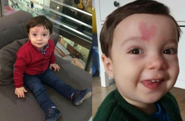 Der Junge wurde mit einem ungewöhnlichen Muttermal geboren: wie er jetzt aussieht