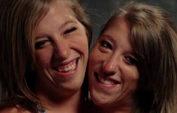 Siamesische Zwillinge bekommen eigene Reality-Show