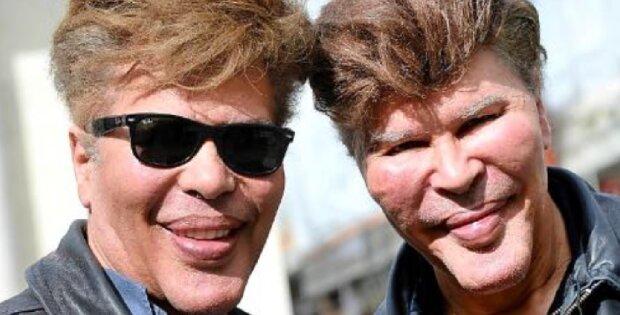 """""""Flucht vor dem Alter"""": Wie sahen die berühmten Zwillinge aus, die sich in jungen Jahren mehrfachen Schönheitsoperationen unterzogen"""
