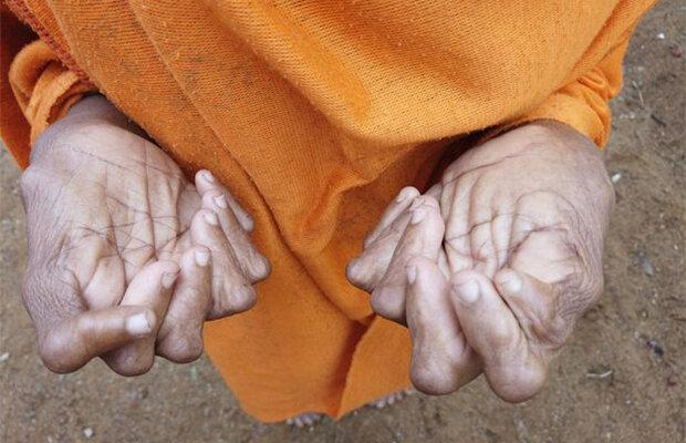 Die Frau, die 31 Finger und Zehen hat