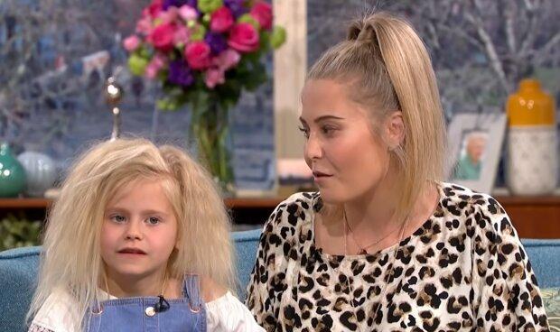 Mädchen mit dem Syndrom der ungebürsteten Haare. Quelle: YouTube Screenshot